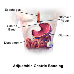 Adjustable gastric banding bariatric surgery