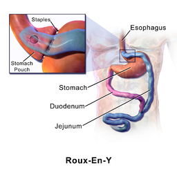 Roux-En-Y bariatric surgery